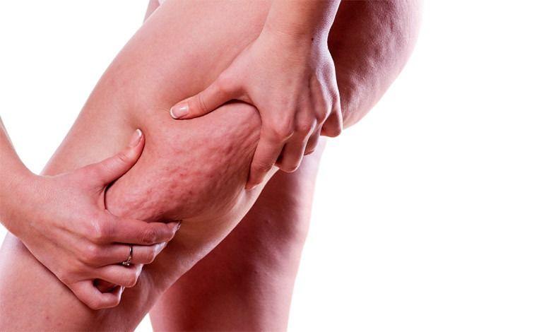 Celulitis! SECRETOS OCULTOS! Como Eliminar la Celulitis en 2020
