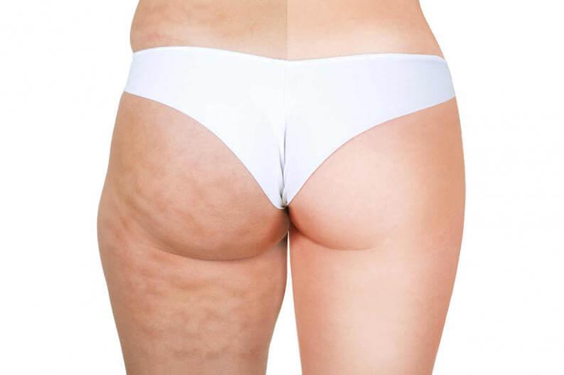 LOS MEJORES 4 Ejercicios para eliminar la celulitis en piernas